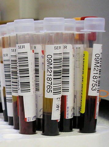 356px-Blood_test