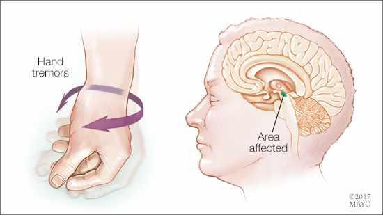 a-medical-illustration-of-the-hand-tremor-associated-with-Parkinsons-disease-and-the-affected-area-of-the-brain-original